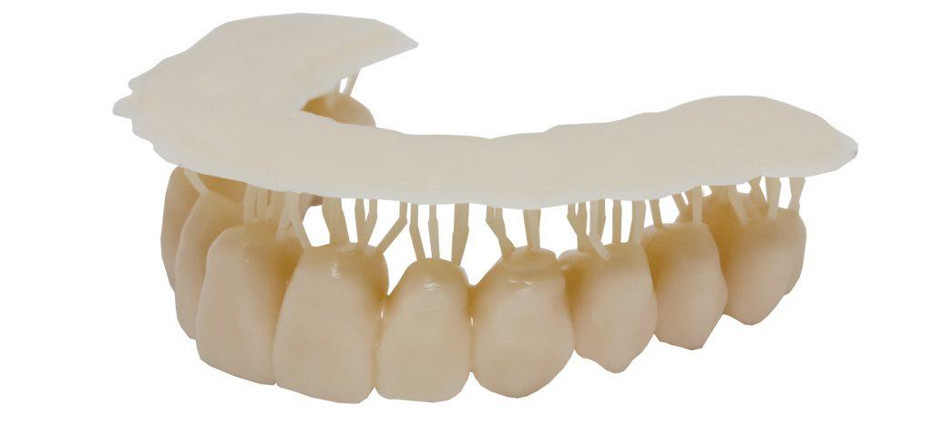 Dentes provisórios